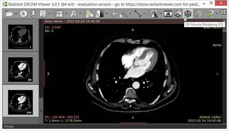 RadiAnt DICOM Viewer 5 0 1 - Chocolatey Gallery